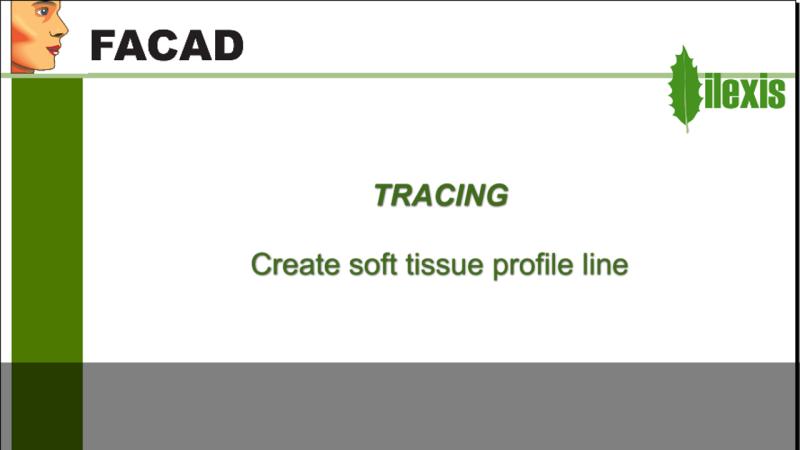 Create soft tissue profile line