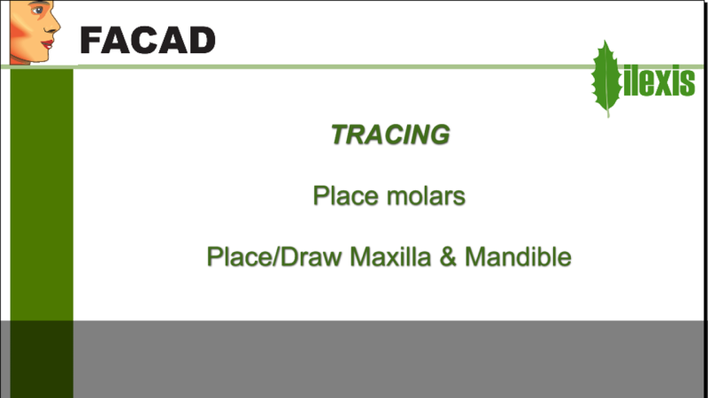 Place/Draw molars and Maxilla & Mandible